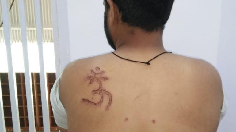 Muslim man branded with Om symbol, denied food by Tihar jail officials